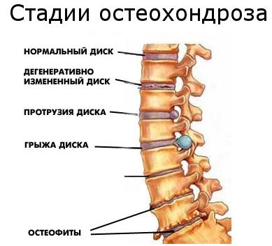 Что такое остеохондроз (2)
