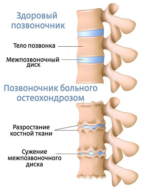 Что такое остеохондроз (3)