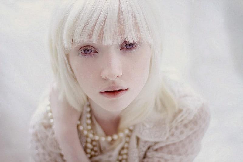 Foto-Albinosyi-1