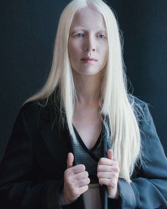 Foto-Albinosyi-10