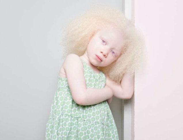 Foto-Albinosyi-12