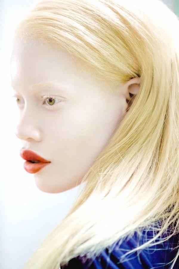 Foto-Albinosyi-5