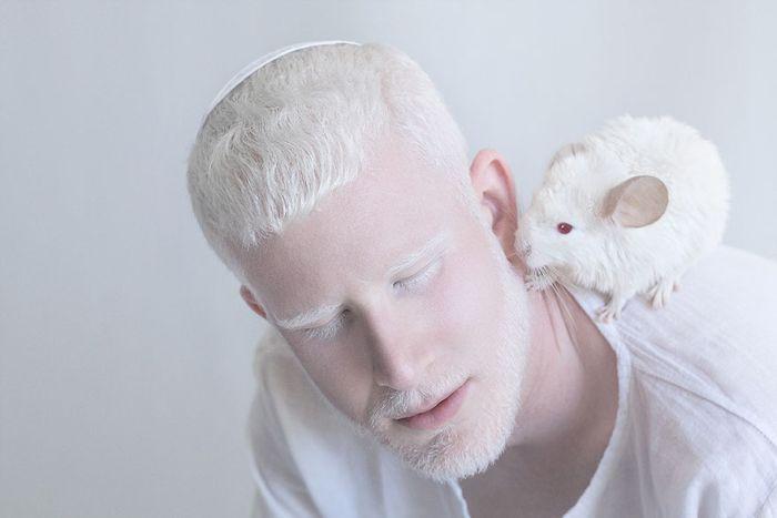 Foto-Albinosyi-8