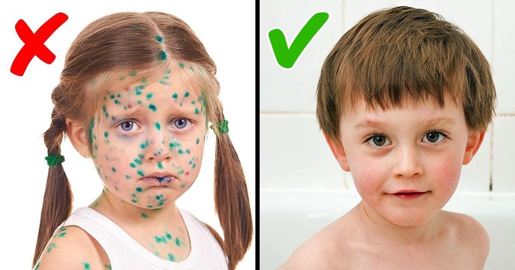 chem-otmyt-zelenku-2