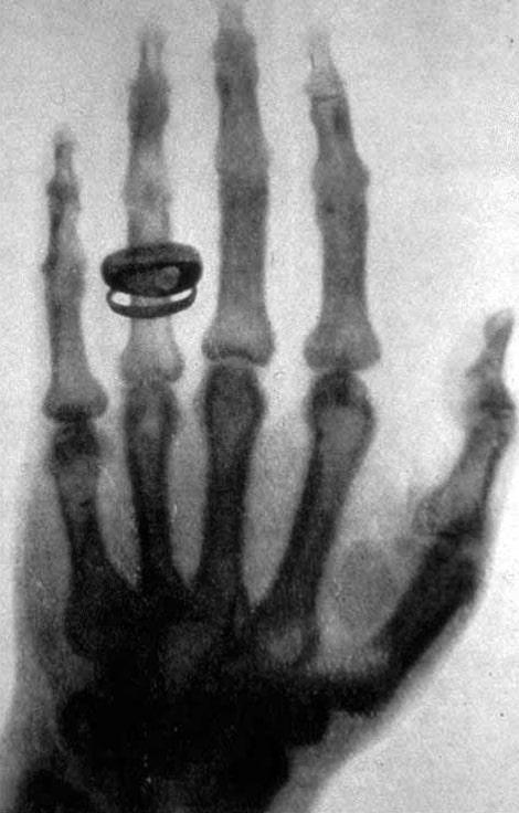 snimok-ruki-sdelannyj-rentgenom-23-yanvarya-1896-goda