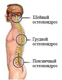 CHto-takoe-osteohondroz-1