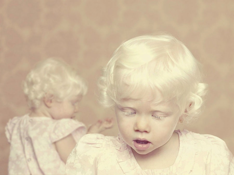 Foto-Albinosyi-3